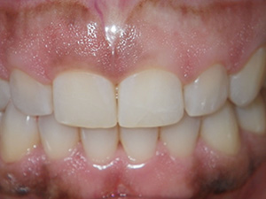 Cosmetic gingival countouring - before
