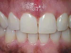 Cosmetic gingival countouring - after