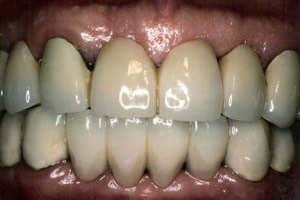Advanced periodontal disease - after