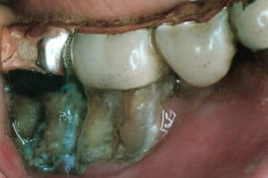 Advanced periodontal disease