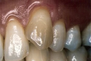 Gingival graft for root coverage after