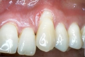 Gingival graft for root coverage before